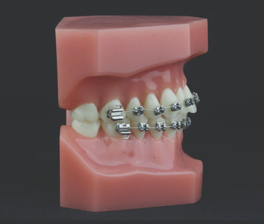 Ortodoncia Dr. Martín Pedernera - Ortodoncia Barcelona, España