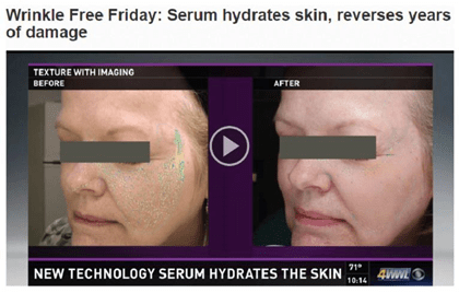 Dermatology Promotions New Orleans - Dr. Lupo and patients rave about Teoxane RHA Serum on WWLTV