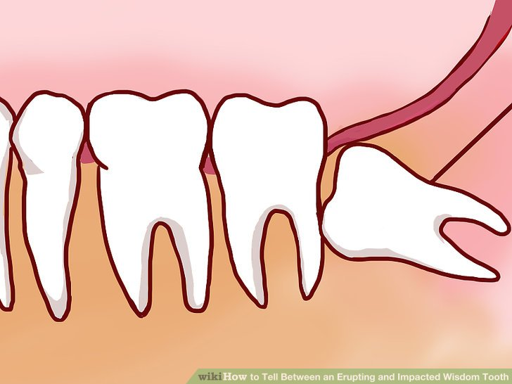 Image result for Wisdom Tooth part 2