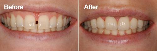dr muzzafar zaman gap between teeth