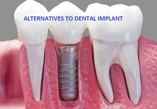 alternative-to-dental-implant