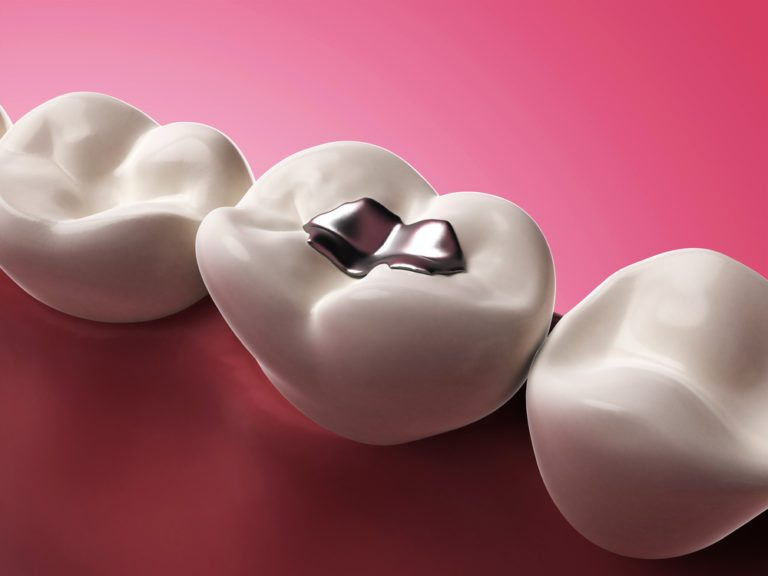 why silver fillings