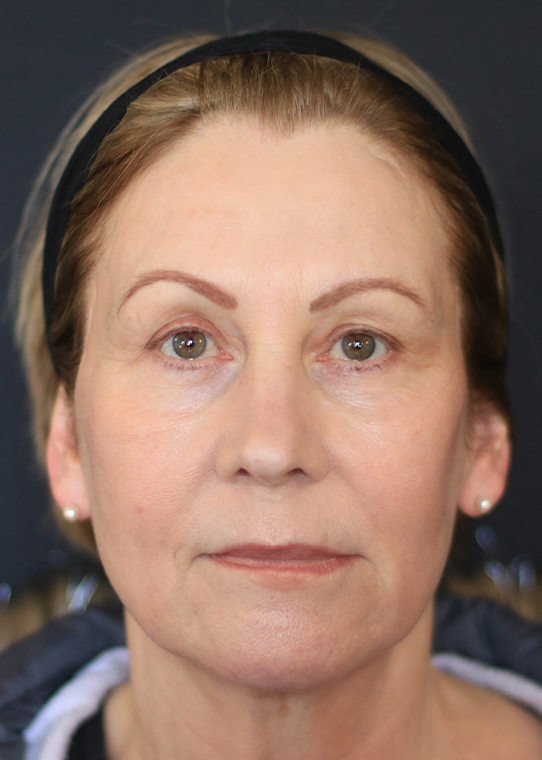 Dr Nestor Medical Cosmetics Centre before & after 12