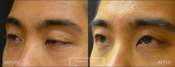 San Diego | La Jolla | Carmel Valley | Del Mar | Encinitas | Plastic Surgery | Cosmetic Surgery | Eyelid Expert | Eyelid Surgery | Ptosis | Oculoplastic Surgery | Browlift | Asian Blepharoplasty | Oculoplastic Surgery | Facial Rejuvenation | Top Plastic Surgeon