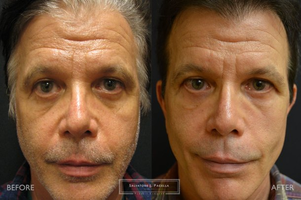San Diego | La Jolla | Carmel Valley | Del Mar | Encinitas | Plastic Surgery | Cosmetic Surgery | Eyelid Expert | Eyelid Surgery | Ptosis | Oculoplastic Surgery | Browlift | Blepharoplasty | Oculoplastic Surgery | Facial Rejuvenation | Top Plastic Surgeon