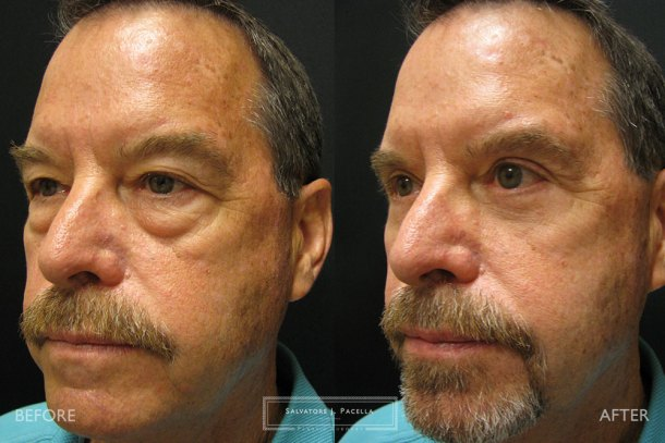 San Diego   La Jolla   Carmel Valley   Del Mar   Encinitas   Plastic Surgery   Cosmetic Surgery   Eyelid Expert   Eyelid Surgery   Eye Bags   Browlift   Blepharoplasty   Oculoplastic Surgery   Facial Rejuvenation   Top Plastic Surgeon