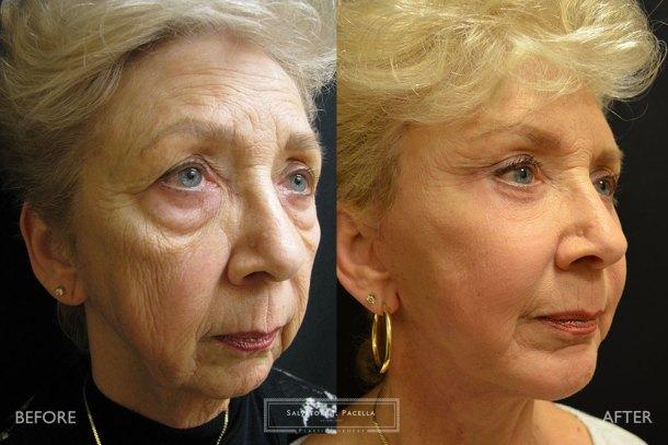 San Diego | La Jolla | Carmel Valley | Del Mar | Encinitas | Plastic Surgery | Cosmetic Surgery | Facelift | Browlift | Fat Transfer | Facial Rejuvenation | Top Plastic Surgeon