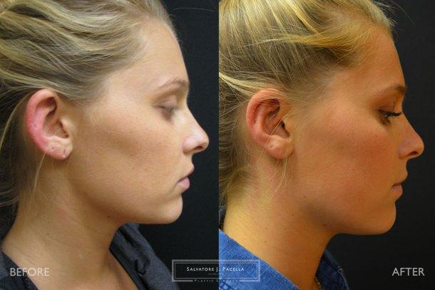 San Diego | La Jolla | Carmel Valley | Del Mar | Encinitas | Plastic Surgery | Cosmetic Surgery | Cosmetic Ear | Otoplasty | Top Plastic Surgeon | Scripps Plastic Surgeon
