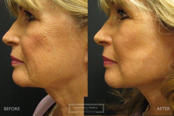 San Diego   La Jolla   Carmel Valley   Del Mar   Encinitas   Plastic Surgery   Cosmetic Surgery    Facelift   Minilift   Cheeklift   Browlift   Fat Transfer   Facial Rejuvenation   Top Plastic Surgeon
