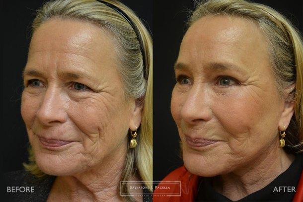 San Diego | La Jolla | Carmel Valley | Del Mar | Encinitas | Plastic Surgery | Cosmetic Surgery | Facelift | Browlift | Fat Transfer | Facial Rejuvenation | Top Plastic Surgeon | Chin Augmentation | Necklift | Eyelid Surgery | Blepharoplasty | Browlift