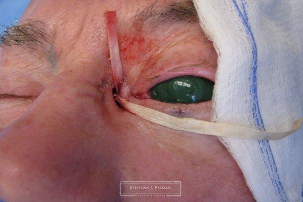 eyelid expert | oculoplastic | ectropion | plastic surgery | San Diego | La Jolla | Carmel Valley | Del Mar | Scripps Plastic Surgeon