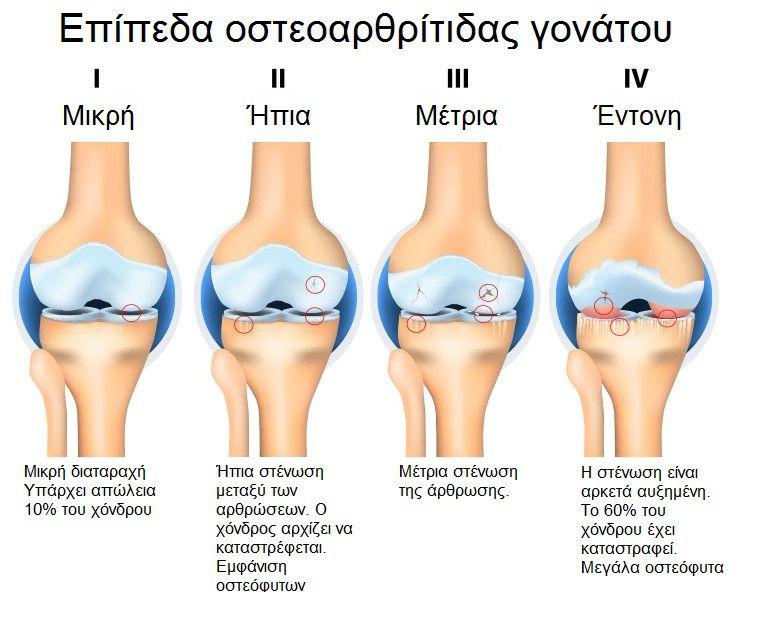 γόνατος στάδια εκφυλισμού