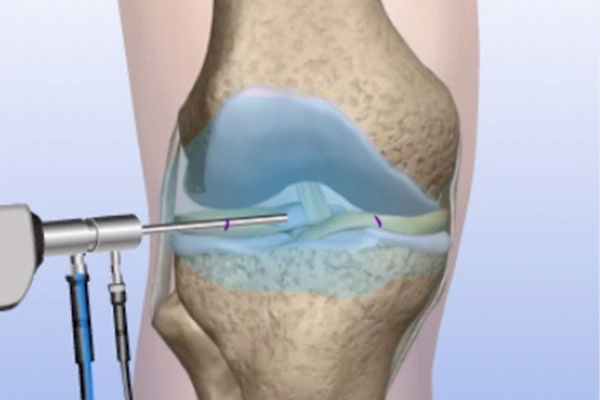 Orthopedic Surgeon In Nashik | Joint replacement surgeon in Nashik | Dr.Parakash Patil