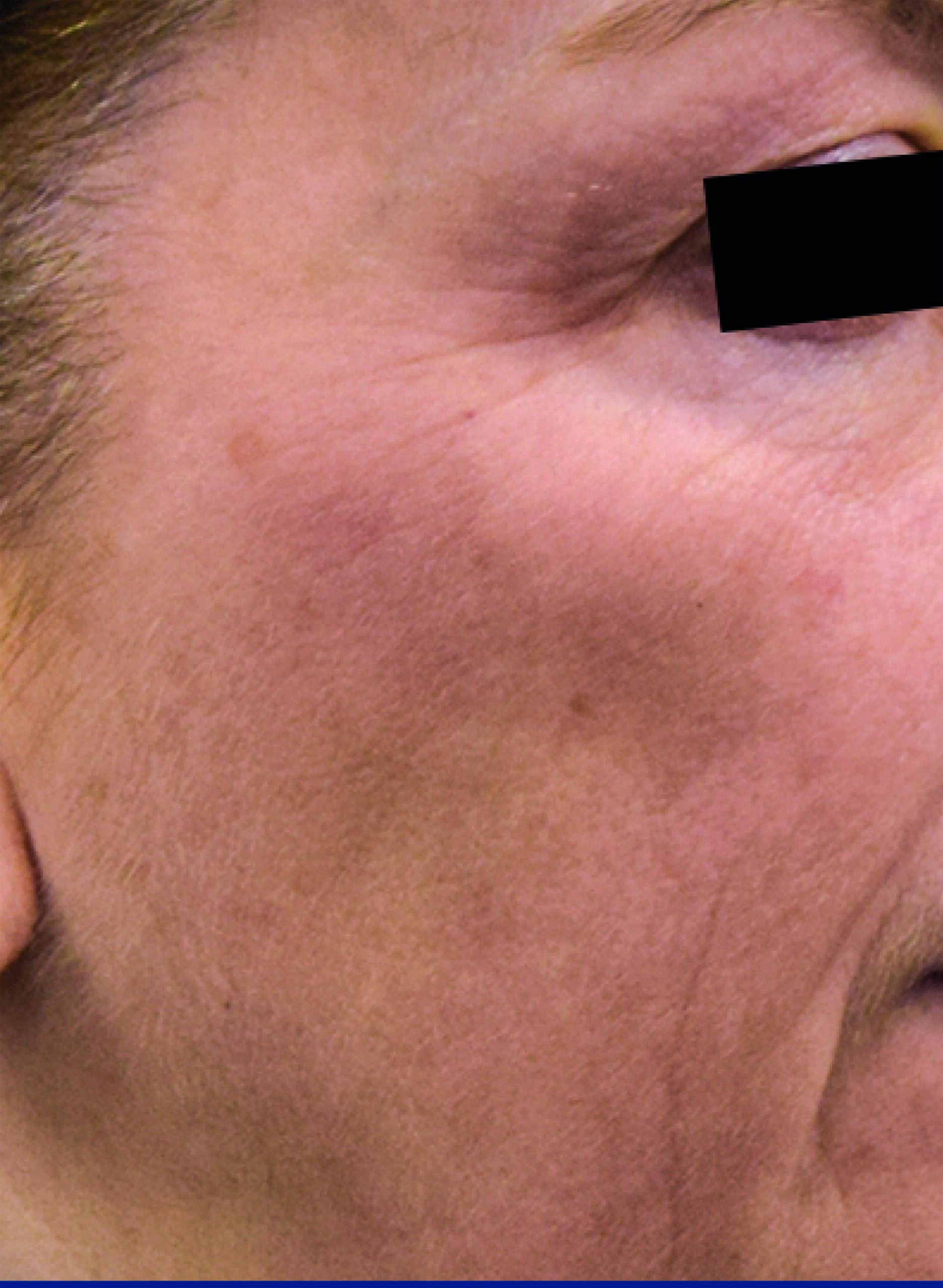 elastiderm eye 1 after