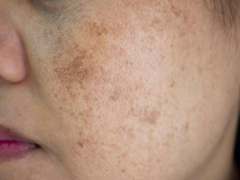 hyperpigmentation, what causes hyperpigmentation