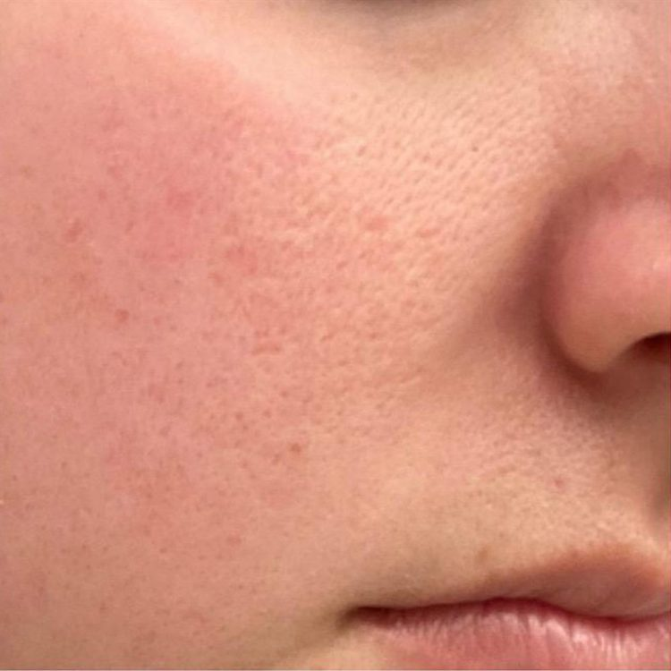 Microneedling skinpen after 2