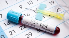 PSA Test for Prostate Cancer