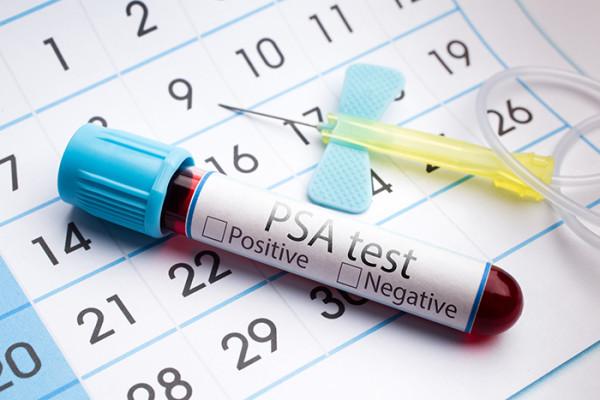 PSA Test for Prostate Cancer
