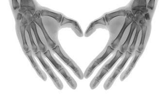 osteoporosis hand bones