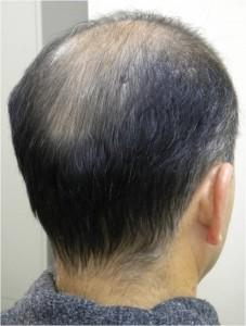 HARG療法 毛髪再生治療 施術前 8月28日
