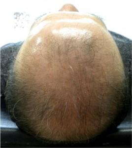 HARG療法 毛髪再生治療 11月22日 3回目