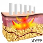 3DEEPテクノロジーによって真皮を効率的に3次元加熱することで、コラーゲン造成を促します。