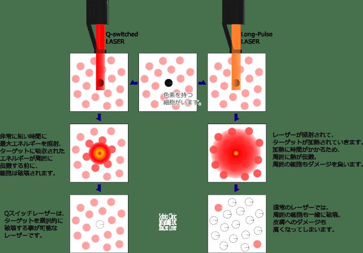 色素を持つ細胞のみを選択的に破壊するQスイッチレーザー
