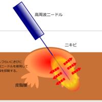 ニキビの治療 圧出・皮脂腺の抑制
