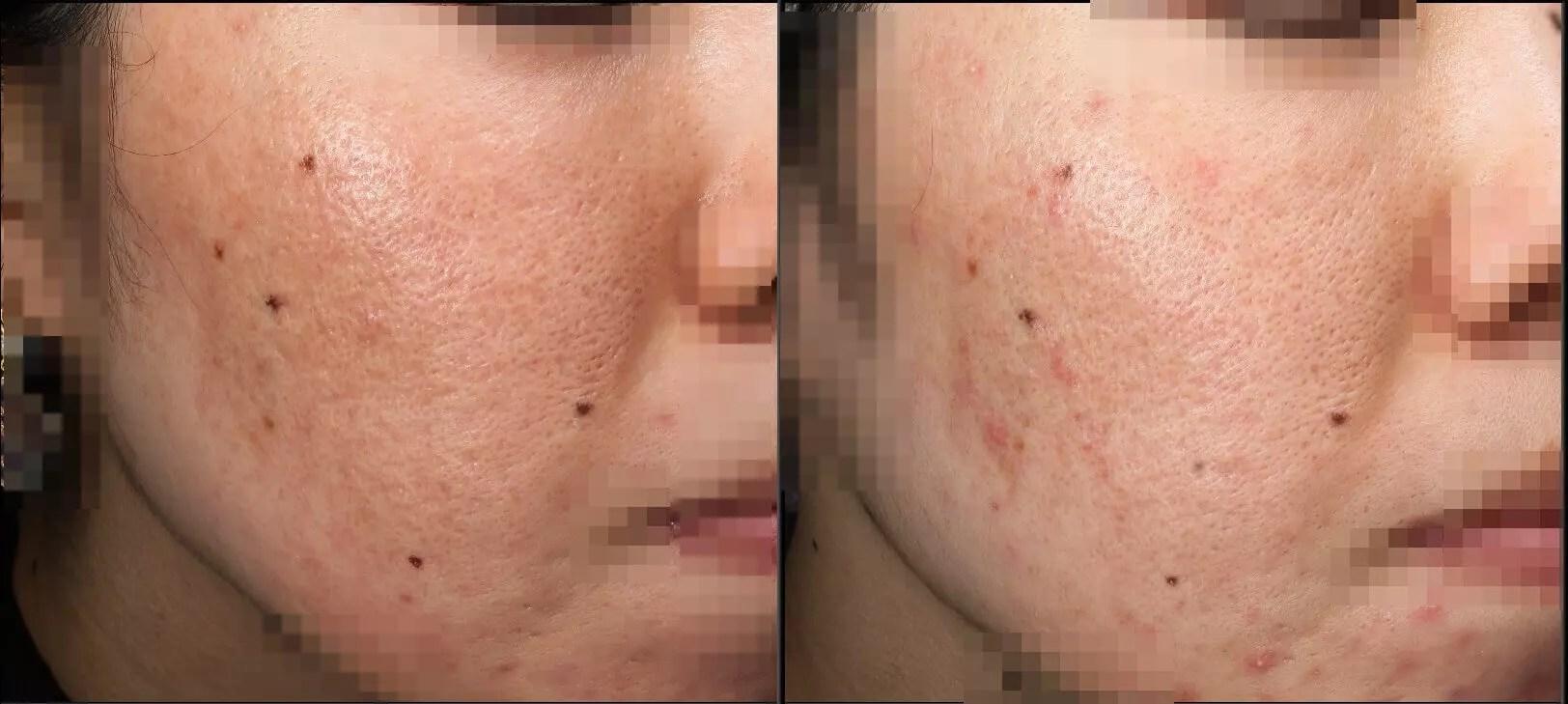 ニキビ跡治療の症例写真