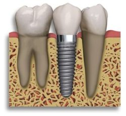 What is the best way to replace missing teeth?