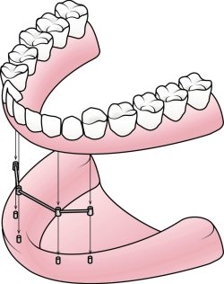 all on four dental implant shippensburg pa