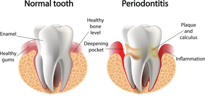 gum disease and tooth loss graphic