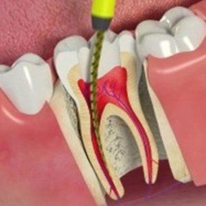 Stomatologie Râmnicu Sărat Stomatologie Râmnicu Sărat stomatologie râmnicu sărat Stomatologie Râmnicu Sărat – Dr. State ENDODONTIE 1 e1580046625164