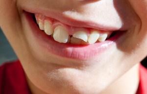 fractura dentară, tipuri de fracturi, simptome și tratamente stomatologie ramnicu sarat drstate fractura dentară Fractura dentară, tipuri de fracturi, simptome și tratamente Fractura dentara tipuri de fracturi simptome si tratamente Stomatologie Ramnicu Sarat DrState