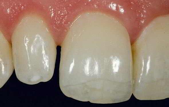 Fractura dentară Stomatologie Ramnicu Sarat DrState fractura dentară Fractura dentară, tipuri de fracturi, simptome și tratamente fisura dentara stomatologie ramnicu sarat drstate