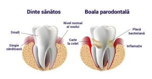 boala parodontalĂ boala parodontală Boala parodontală – Ce reprezintă? BOALA PARODONTALA 1