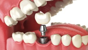 tooth implant. dental concept. human teeth or dentures. implantele dentare Implantele dentare – etape de tratament Implantele dentare etape de tratament Dr State