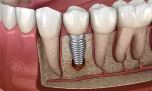 extractia dentara dr state ramnicu sarat extracția dentară Extracția dentară – Ce se întamplă dacă nu este înlocuit  la timp dintele extras? extractia dentara dr state ramnicu sarat