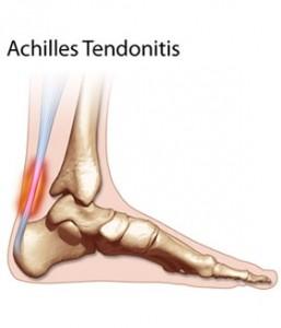 thm-achilles-tendonitis