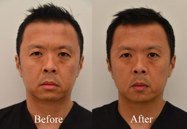Ultherapy_Before and After_Front_1