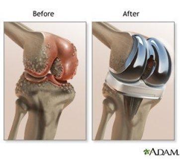 Solusi Pengapuran (Osteoarthritis) Lutut