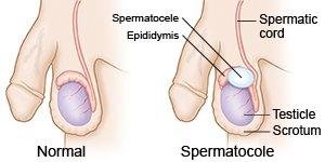 """""""spermatocele"""" ile ilgili görsel sonucu"""
