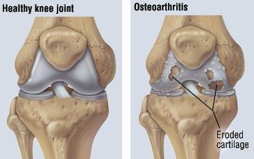 3 exerciții pentru pacienții cu osteoartrita genunchiului