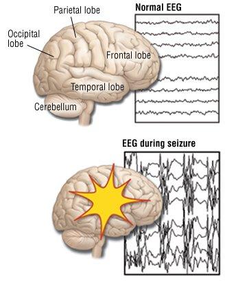 Partial Seizures (Focal Seizures)
