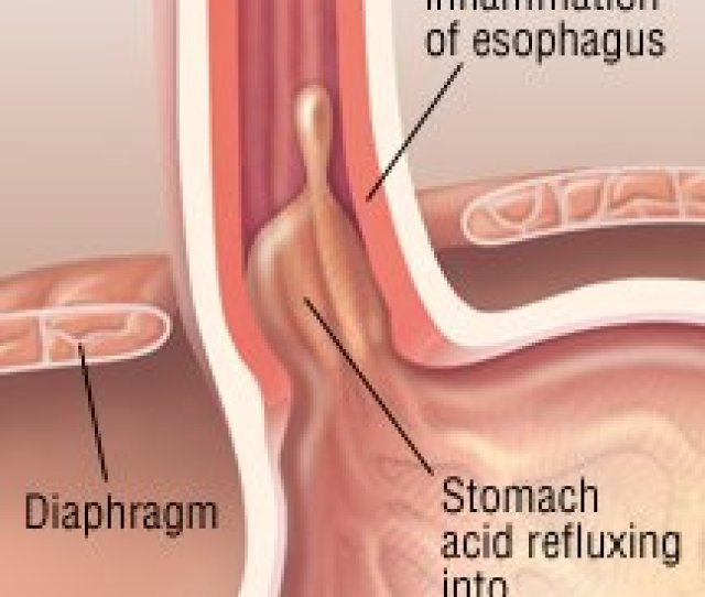 Eating Disorders Similar To Acid Reflux Frequent Vomiting Can Cause Acid Burn In The Esophagus Esophagitis Sometimes Is Seen In People With Eating