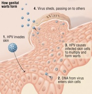 Human Papilloma Virus (HPV) Guide: Causes, Symptoms and
