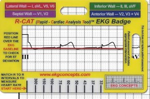 Best Ekg Calipers