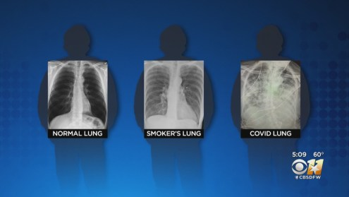 Texas Trauma Surgeon Says 'Post COVID Lungs Look Worse Than Any Type Of Terrible Smokers Lung We've Ever Seen'