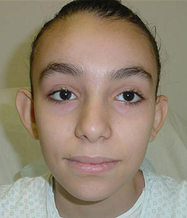 12 year old girl with large protruding ears. She also underwent ear ...