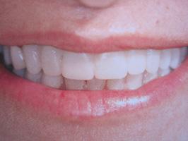 Trattamento n° 1 – Sostituzione di 6 denti con ponte fisso su 4 impianti